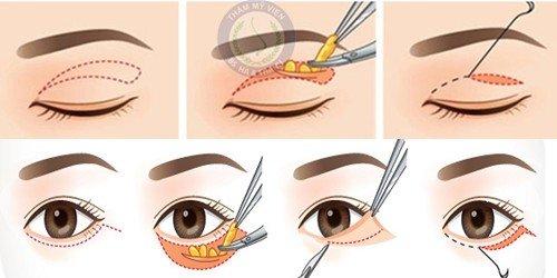 Lấy mỡ mi mắt an toàn tại Hà Thanh