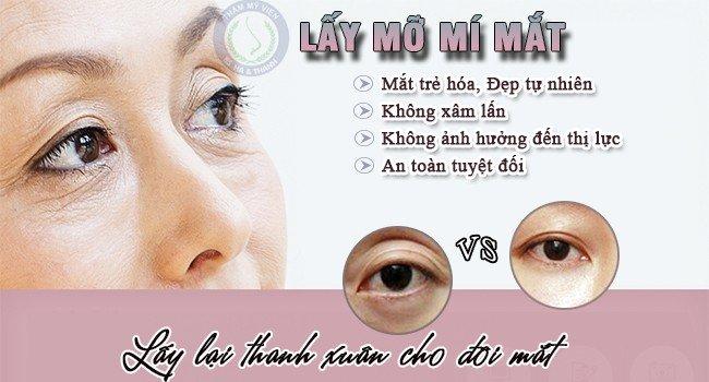 Lấy mỡ mí mắt giúp trẻ hóa đôi mắt