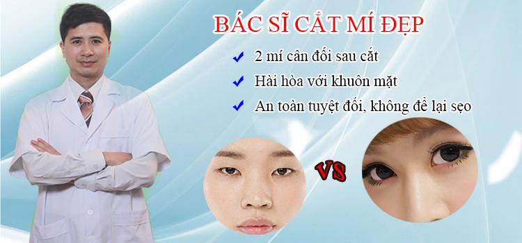 Bác sĩ nào cắt mí mắt đẹp ở tại Hà Nội