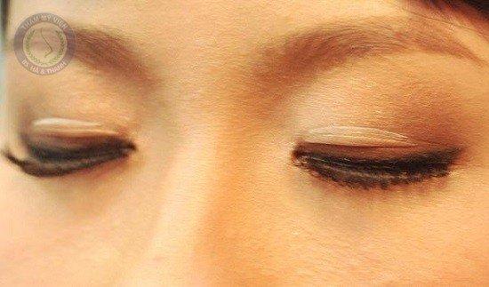 Nguy hiểm rình rập khi dùng keo kích mí mắt