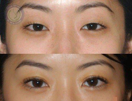 Cách chữa trị sụp mí mắt bẩm sinh
