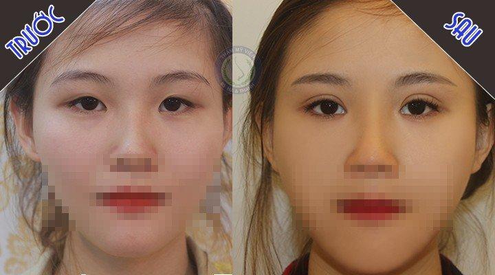 Đặng P.Th trước và sau bấm mí mắt Hàn Quốc