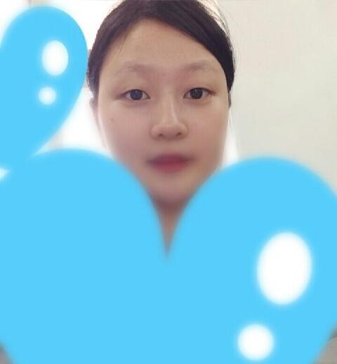 Quỳnh Trang trước khi chỉnh sửa mắt mí lót