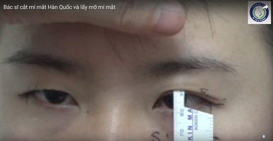 Khách hàng đo và cắt mí mắt tại Hà Thanh