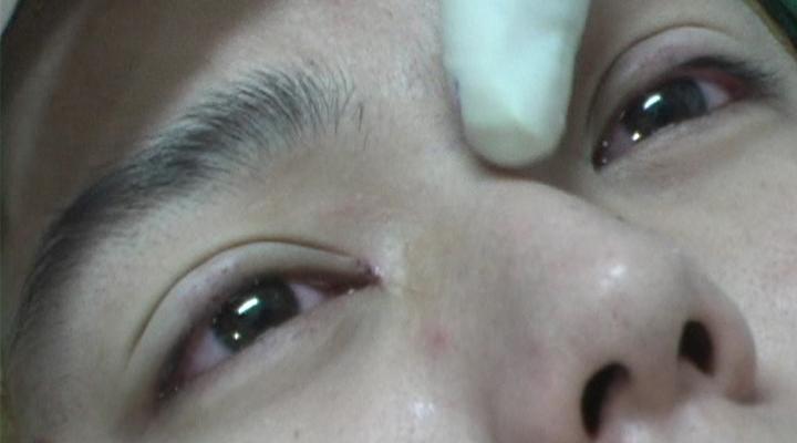 Kết quả sau khi cắt mí mắt của khách hàng