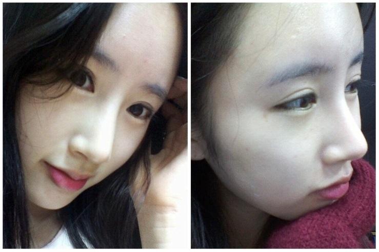 Hương Ly sau 3 tháng cắt mí mắt