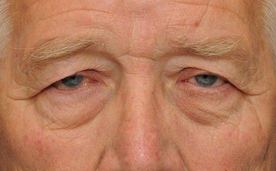 Kết quả hình ảnh cho mắt to mắt nhỏ ở người lớn tuổi