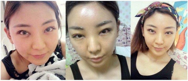 Tú Quyên ngay sau khi bấm mí mắt Hàn Quốc tại Hà Thanh