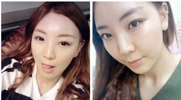 Tú Quyên sau 3 tháng bấm mí mắt Hàn Quốc tại Hà Thanh