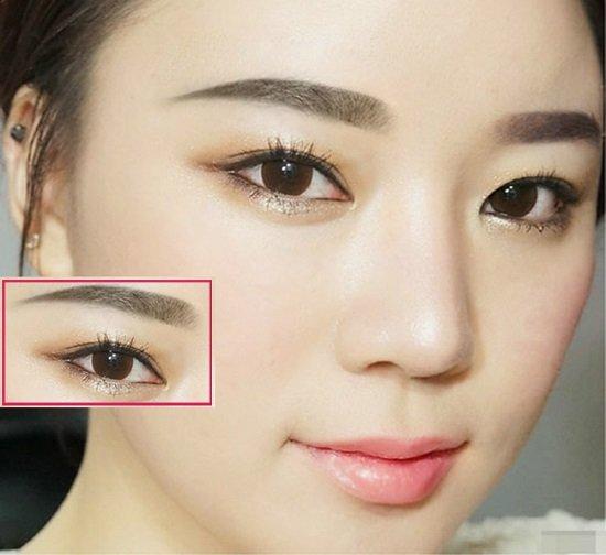 Kết quả bấm mí mắt Hàn Quốc đẹp của khách hàng