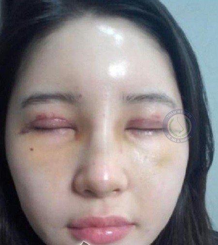 Mặt hại của bấm mí mắt