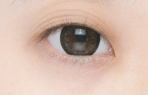 Giải đáp mắt 3 mí là gì